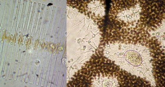 Two images of phytoplankton are shown; the rectangular cell walls of diatoms on the left and round cells of microcystis on the right.